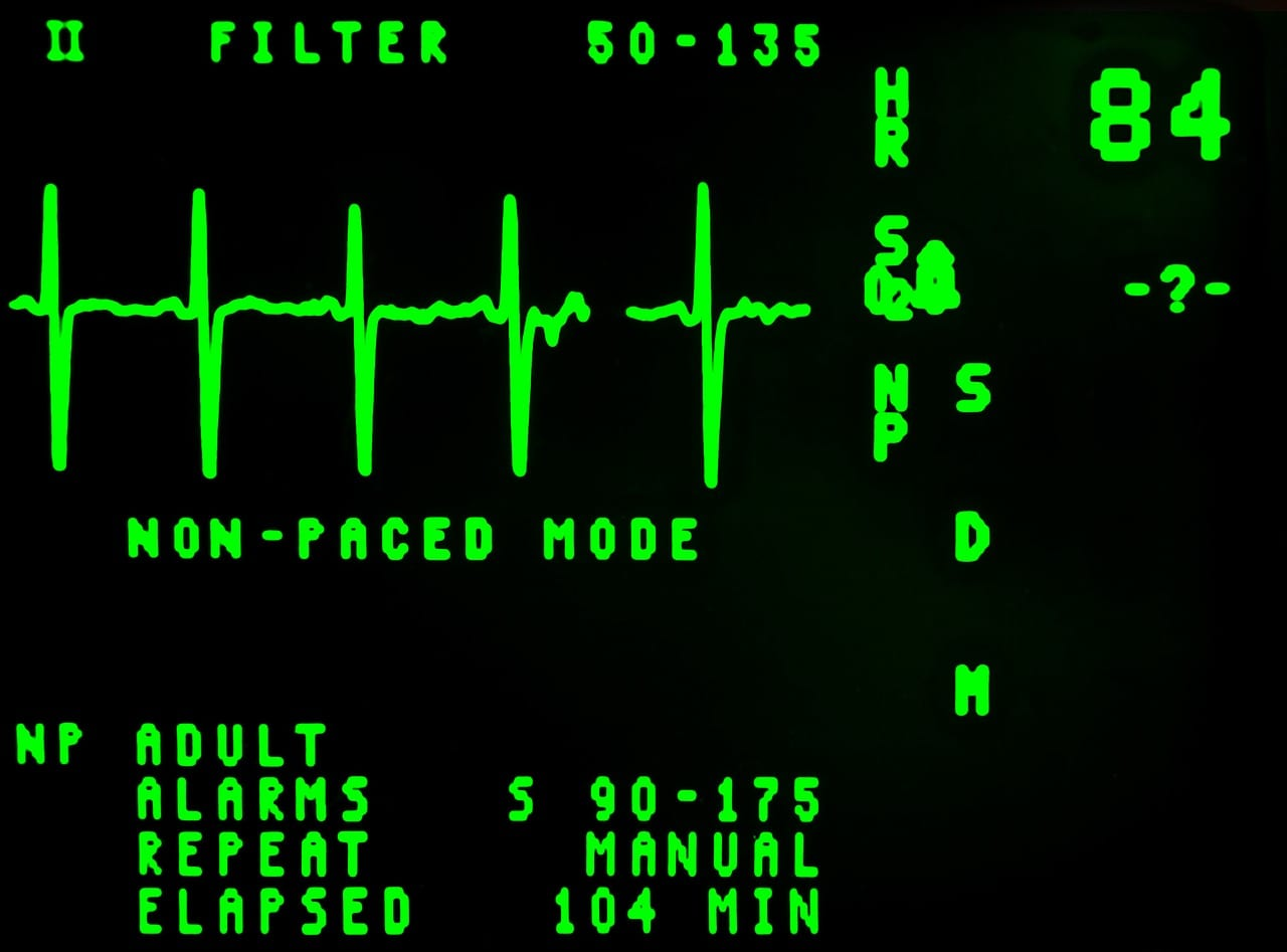 רשלנות רפואית בצנתור לב